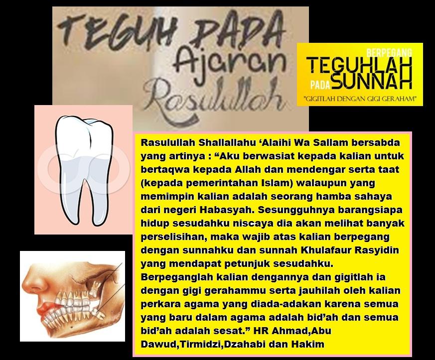 gigi geraham sunah